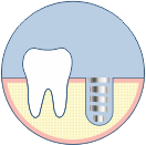 implant placement
