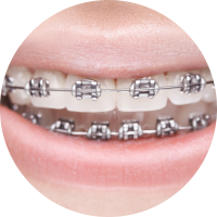 Metal Wired Braces