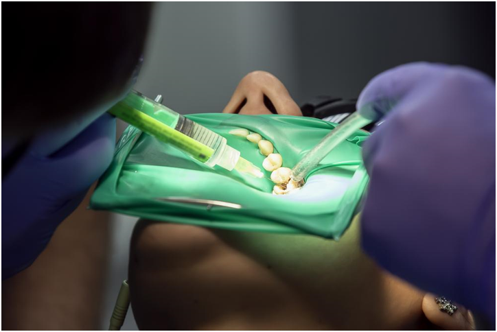 Root Canal Without Dental Insurance